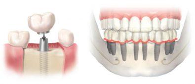 estetica dental barcelona
